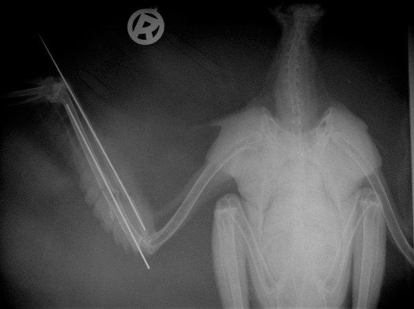 Röntgenbild eines genagelten Handknochens (D. Hegemann)